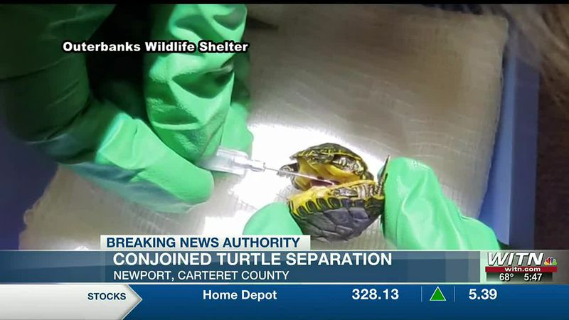 Both conjoined turtles have died after separation, N.C. aquarium still calls it a major success
